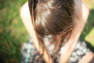 頭皮日焼けヘッドスパ対策